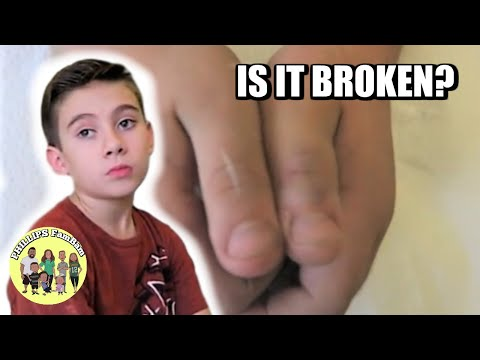IS HIS THUMB BROKEN? | HE IS SO NERVOUS | PHILLIPS FamBam Vlogs