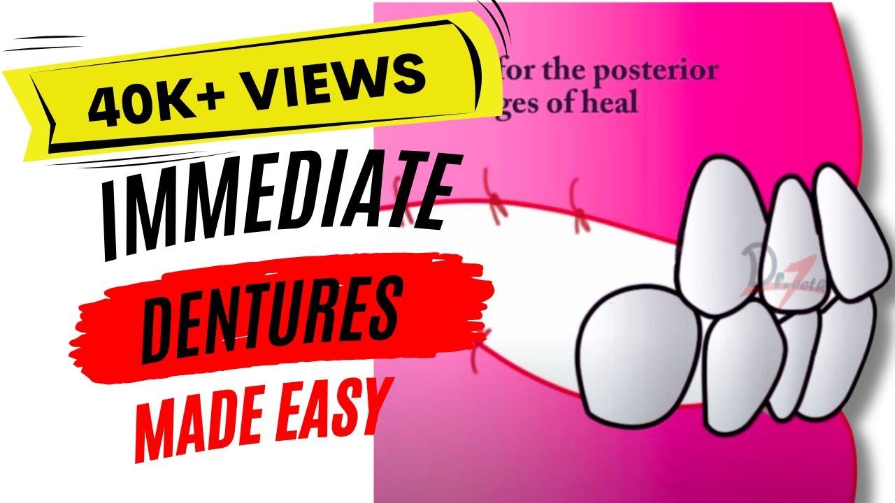 Immediate dentures | Clinical Steps
