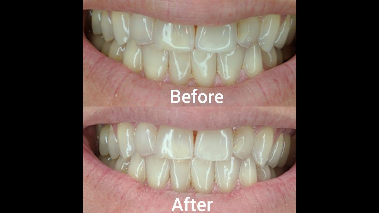 ap24 tandpasta test
