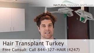 Hair Transplant Turkey | Know Before You Go
