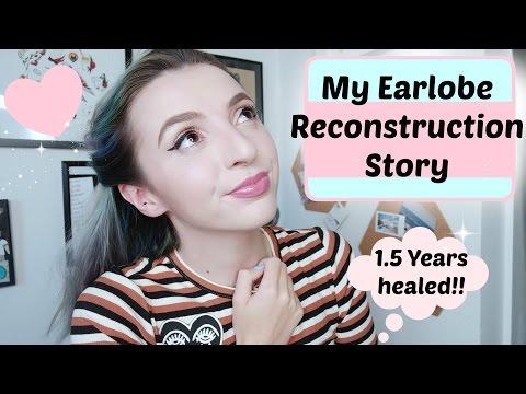 My Earlobe Reconstruction Story Years Healed