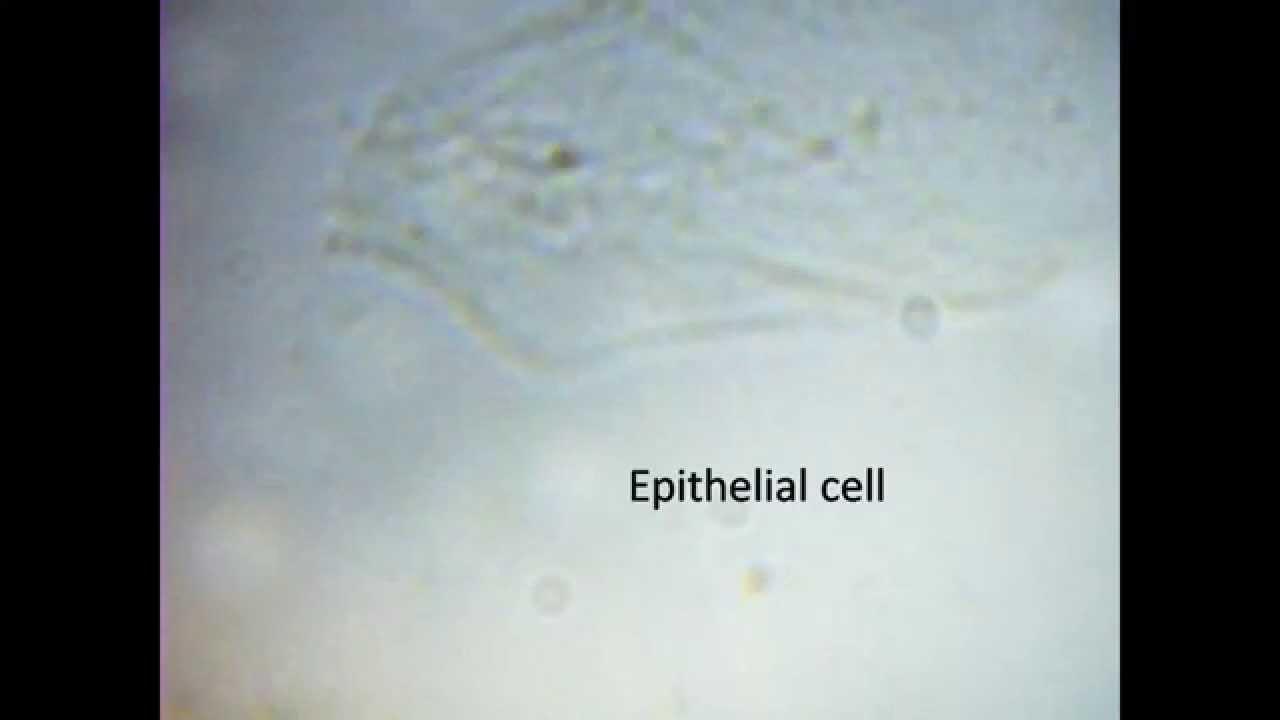 Blod under mikroskop youtube
