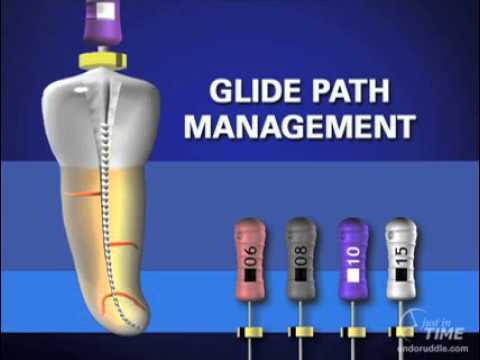 Glide path and treatment sequence