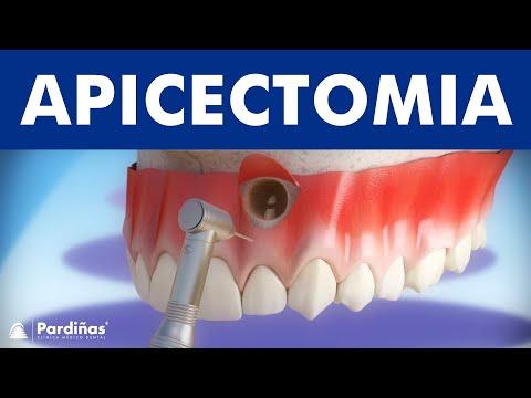 Apicectomia 169 Youtube