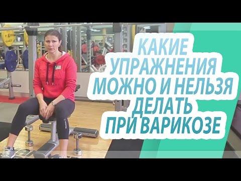 Какие упражнения можно и нельзя делать при варикозе