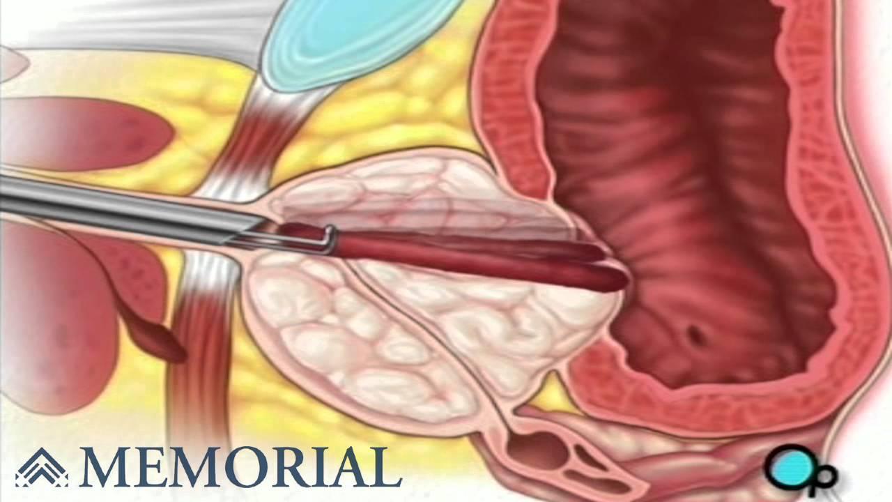 cirugía de próstata turp o prueba con láser