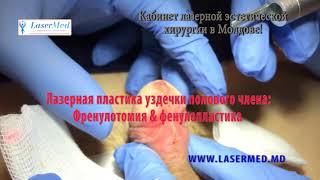 лазерная френулотомия пластика уздечки& френулопластика в Молдове  Кишиневе !