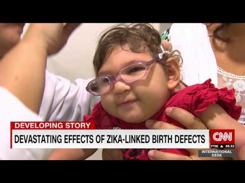 Ground zero of the Zika virus - a look at the babies most affected