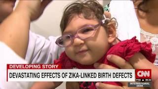 IBU PINTAR - Kenali Gejala Penyakit Zika (12/02/16) Part 3/3.