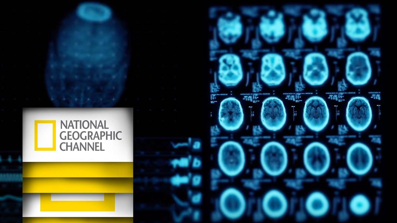 Beyin Ameliyatı: Canlı Yayın