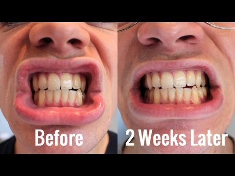 Teeth Whitening | BlanX White Shock With LED Bite | Review