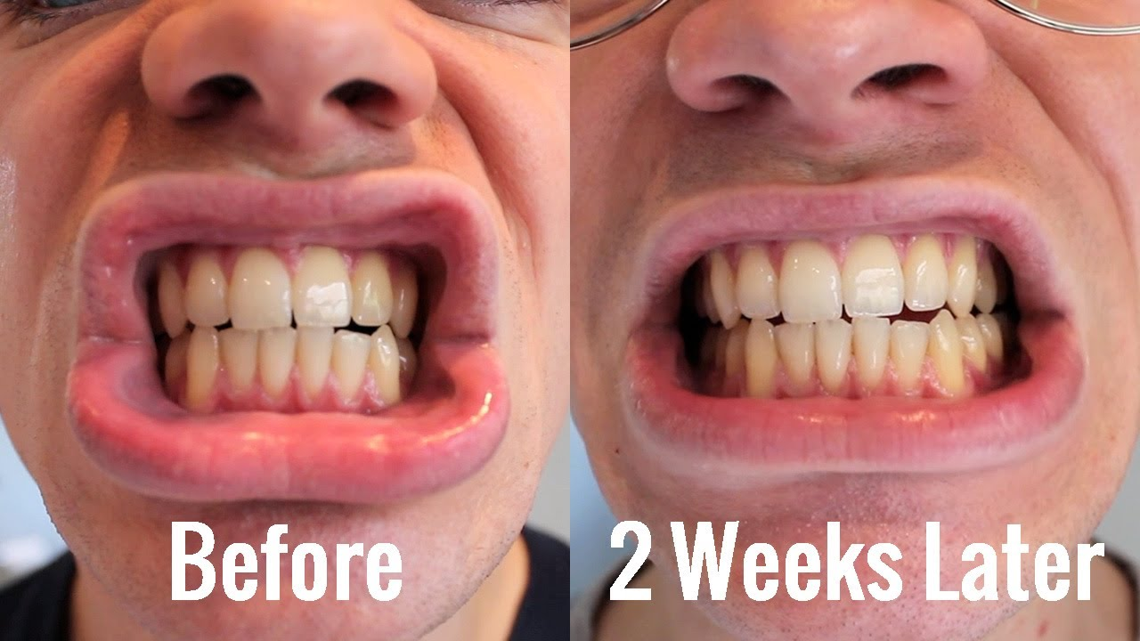 Teeth Whitening Blanx White Shock With Led Bite Review Youtube