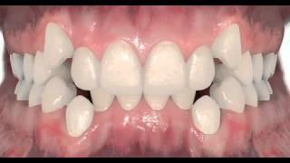 Non-Extraction permanent teeth - Dr. Matthew David McNutt, Orthodontist