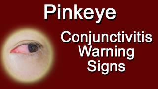 Pinkeye - Conjunctivitis Warning Signs