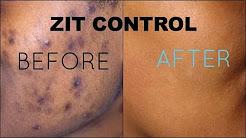 hqdefault - Neutrogena On-the-spot Acne Treatment Cream Reviews