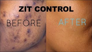 ZIT CONTROL | Drugstore Products On-the-Spot Acne Treatment + Rapid Clear 2-in-1 Fight & Fade Gel