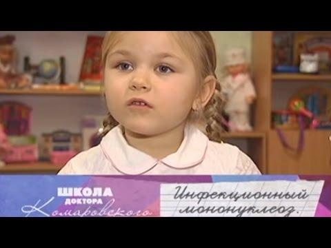 Инфекционный мононуклеоз - Школа доктора Комаровского