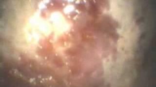 хронический гастрит у собаки www.endovet.tv