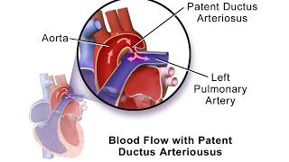 What is patent ductus arteriosus? The ductus arteriosus is a blood vessel that attaches the aorta to.