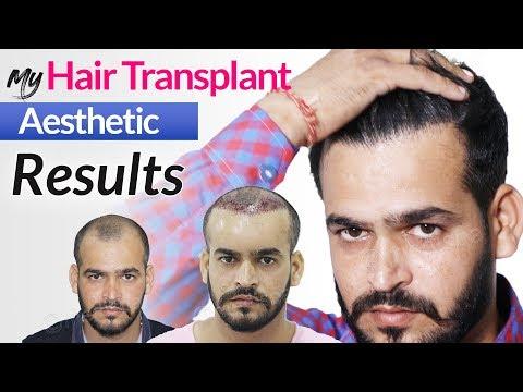 Unique Hair Transplant Results In India 2020 | Grade III Baldness | Medispa Jaipur
