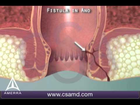 Anal fistula surgery