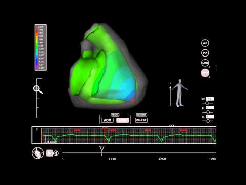 Europace : Validation of the mapping accuracy of a novel non-invasive epicardial and endocardial...