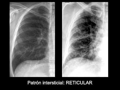 Radiografía de tórax rhb cardiopulmonar ak1 162 umb