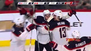 Canada vs USA  Day 6 (31/12/2014)  IIHF World Junior Champs 2015 Highlights HD