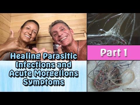 Healing Parasitic Infections & Acute Morgellons Symptoms Part 1 | Lecture | Dr. Robert Cassar