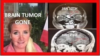 No Dieting, How To Shrink Brain Tumor By Adding One Food