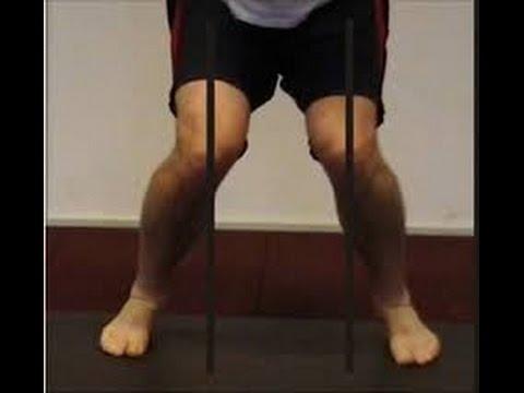Knee Valgus, Improper Squatting Bio Mechanics