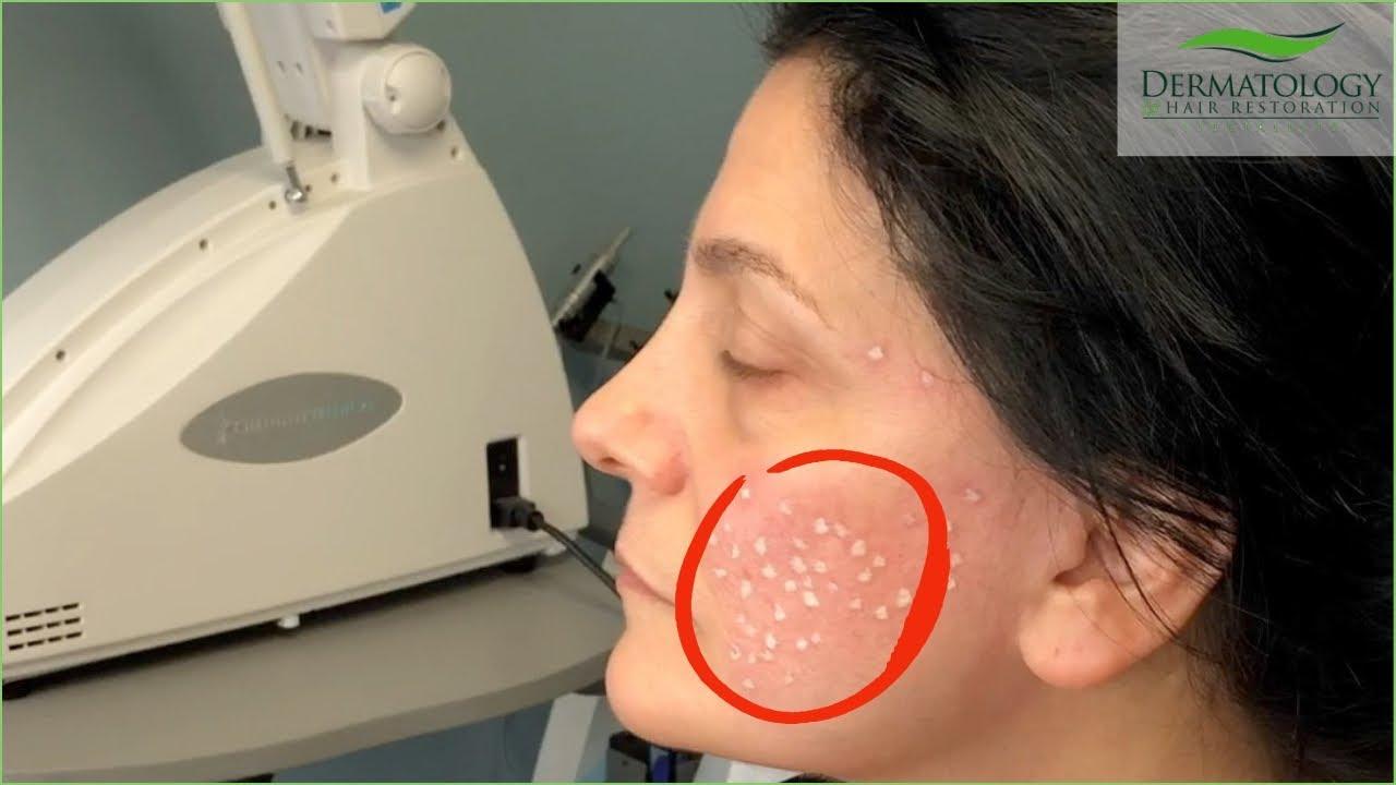 Acne Scar Removal in Los Angeles using TCA Cross Technique