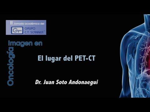 El lugar del PET CT