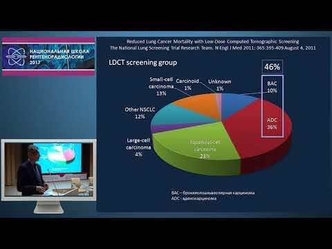 И.Е. Тюрин - Визуализация аденокарциномы легкого