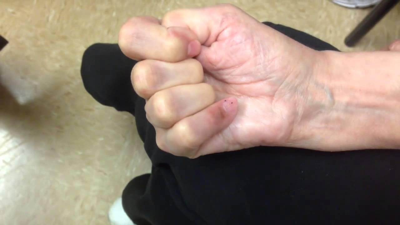 Surgery thumb fusion