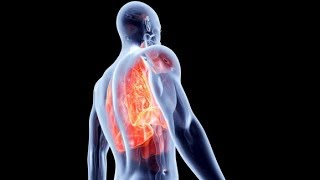 Oxygen Deficiency In Body - Hypoxia Signs And Symptoms