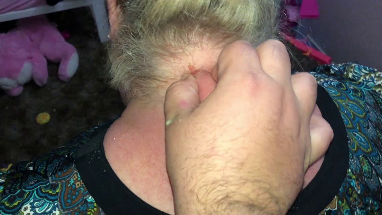 Huge Pimple squirt - YouTube