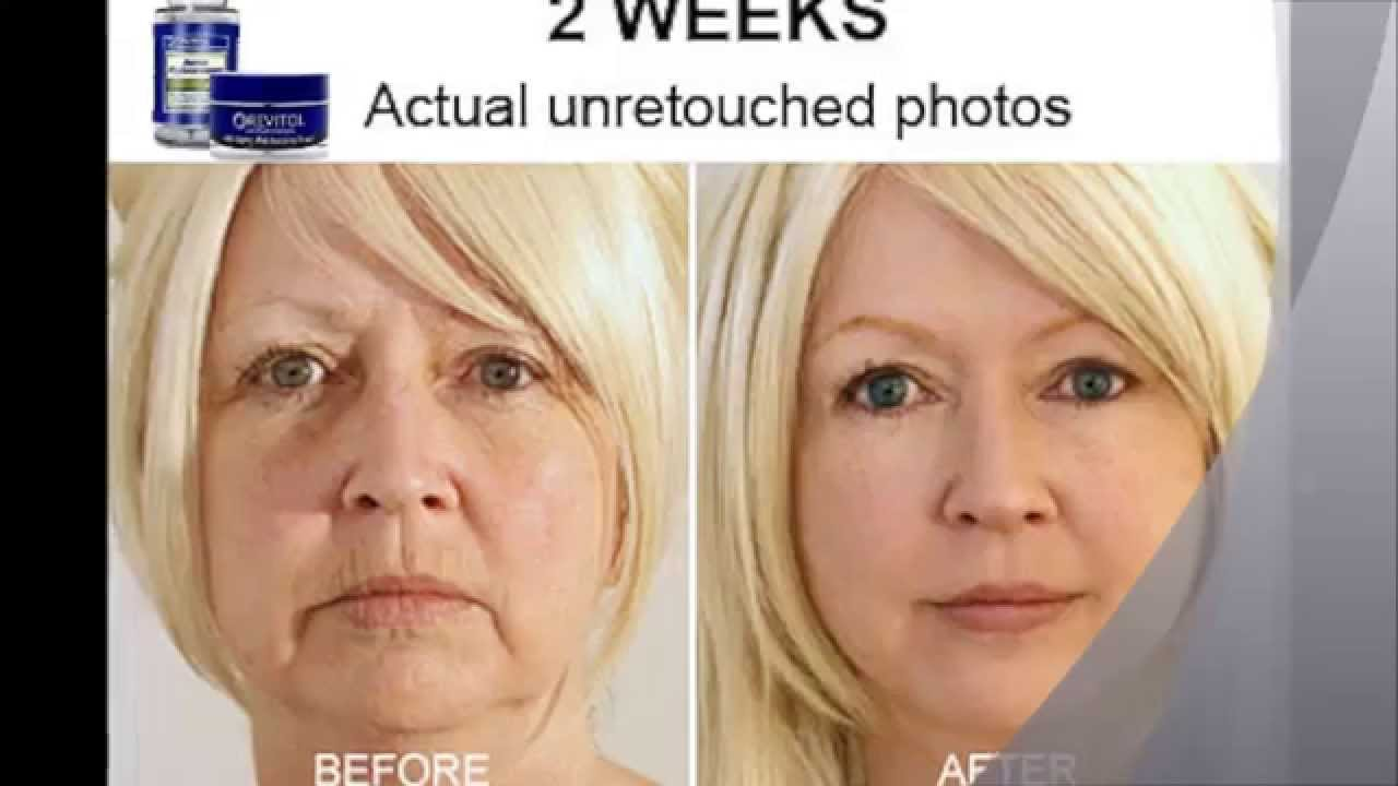 instant face lift in a bottle