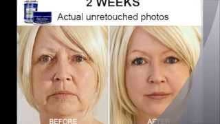 Cosmetic Surgery Before The Age Of 18