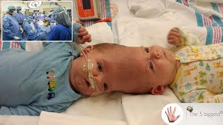 After $2.5 Million Conjoined Twins Separation Surgery! Find Out How They Look NOW!!~Body Bizarre!