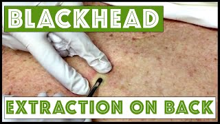Updated blackhead cyst x2 extraction on the back!  For medical education- NSFE. thumbnail