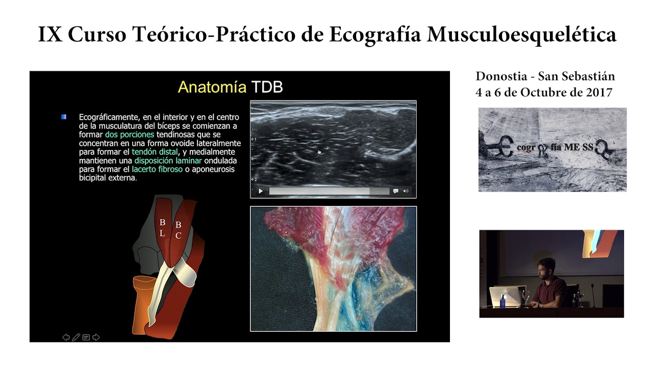 Lesiones del tendón distal del bíceps - YouTube