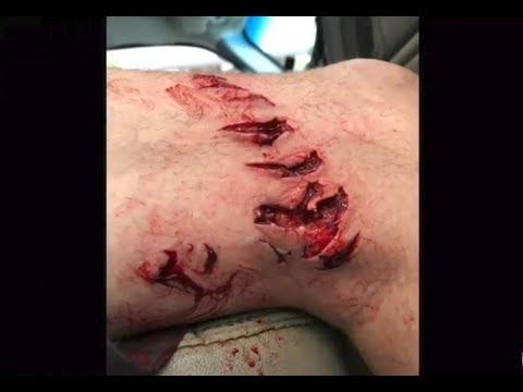 Shark Attacks Man Near Galveston, Texas