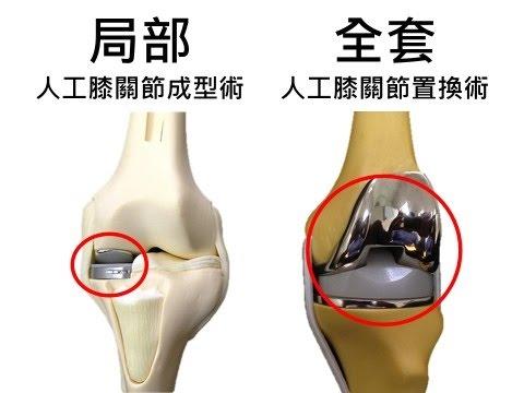 「膝關節」的圖片搜尋結果