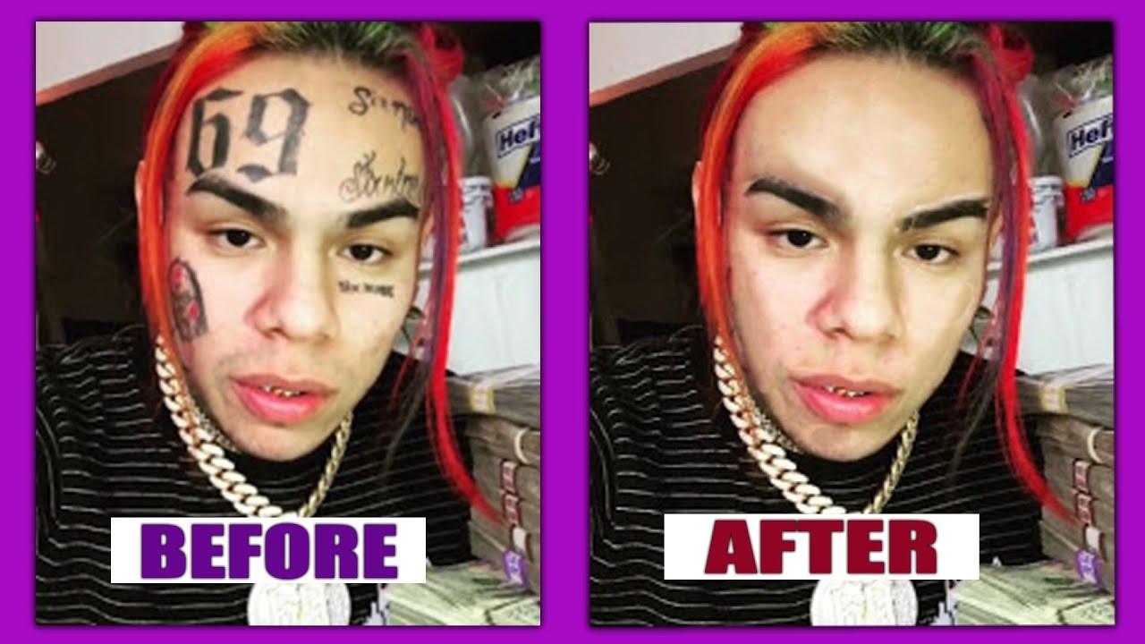 Removing 6ix9ine Face Tattoo