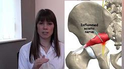 "4) Sciatica - Cheadle Osteopathy's ""BACK IN A MINUTE"" series."
