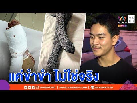 ทุบโต๊ะข่าว: หนุ่มโพสต์ตีขาแฟนใส่ถุงน่องงูขาหัก ยอมรับไม่ใช่เรื่องจริง ยืมภาพเว็บ แชร์ขำขัน 23/12/61