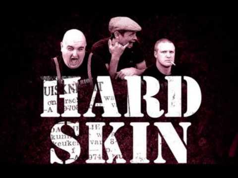HARD SKIN - Romford