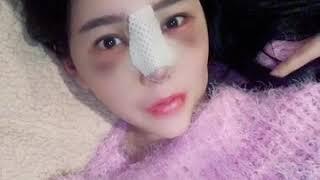 강남 코성형 재수술 유명한 성형외과 후기