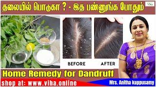 Beauty Tips /தலையில் பொடுகா ?/ Remedy for Dandruff/ Anitha Kuppusamy